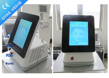 China CE Passed Portable Laser Spider Vein Removal Machine 980nm Varicose Veins Removal distributor